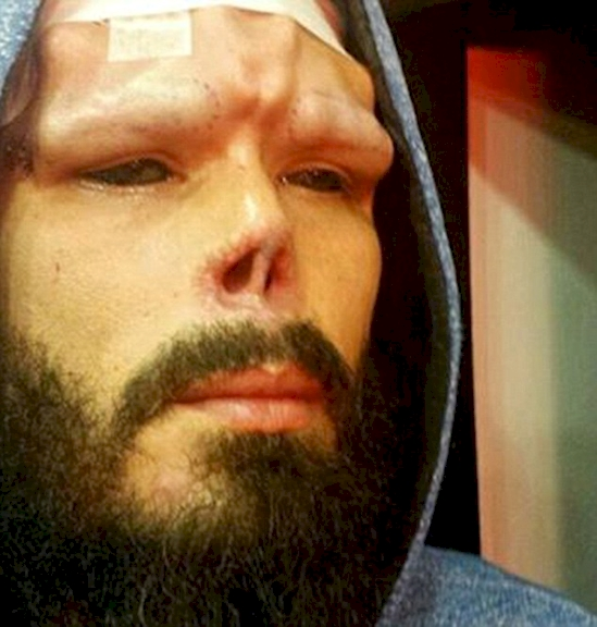 Man cut his nose to look like a favorite character, this is how he looks now3
