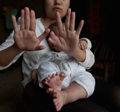 baby-born-with-15-fingers-and-16-toes-undergoes-surgery2